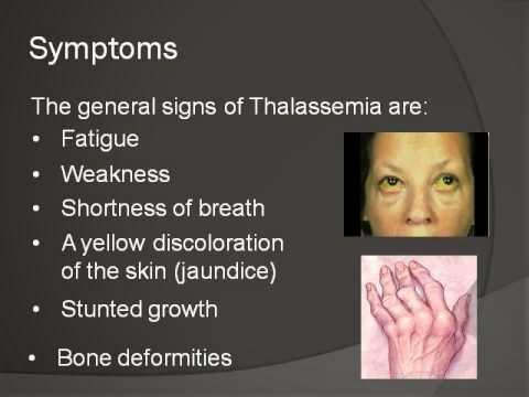 Simptom penyakit talasemia
