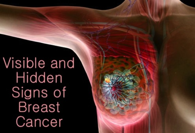 Visible-and-Hidden-Signs-of-Breast-Cancer-explained