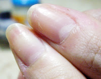 Levels of Nicotine on Finger Nails
