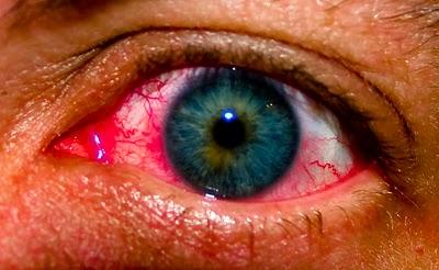 Las sanguijuelas para el ajuste de la persona