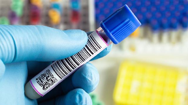Afortunada coincidencia: tratamiento para el cáncer podría ser la clave contra el alzhéimer