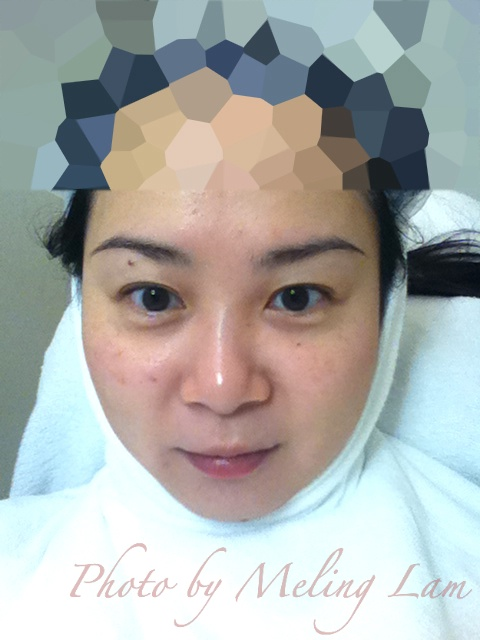 reenex cps 水基酸更新療程