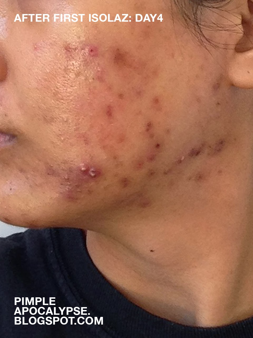 how to cure acne fast, acne breakouts before and after, Isolaz laser before and after, Isolaz review, cystic acne, closed comedones, clogged pores, whiteheads, hyperpigmentation, acne scars, Laser Genesis on dark skin, Laser Genesis review, P. acne bacteria