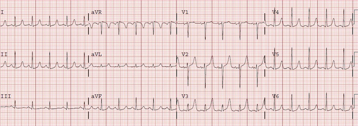 Inferior Wall MI With Subtle ST Elevation  ECG Guru