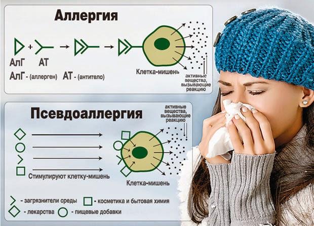 Псевдоаллергия: как отличить и как избежать.