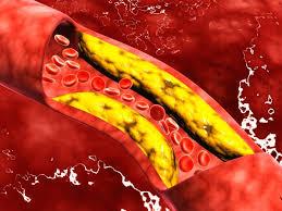 Apa yang terbayang pada benak kita ketika mendengar kata kolesterol?