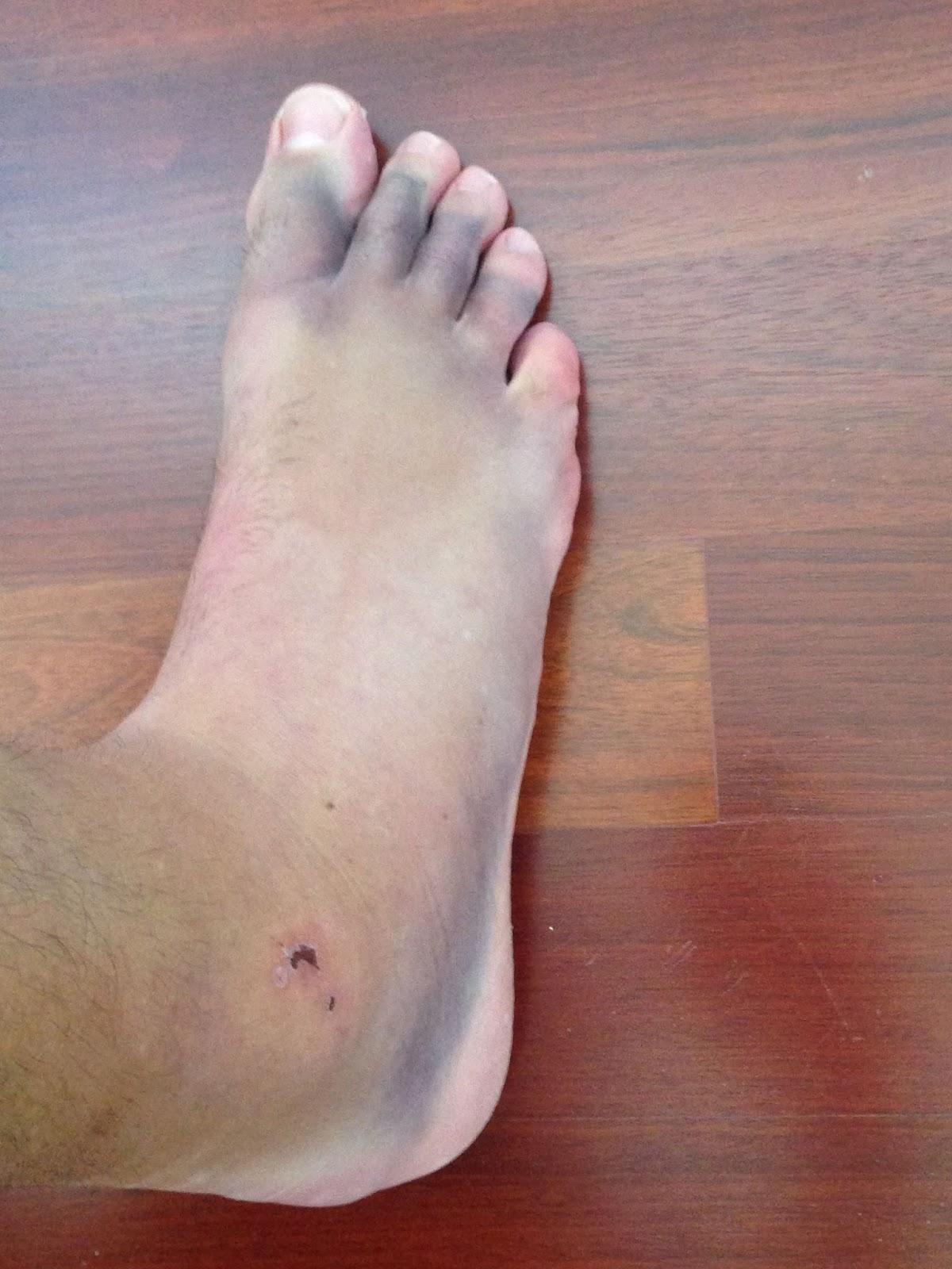 Sobresalen las venas en los pies que puede ser