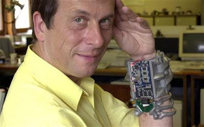 Lima Manusia Cyborg Yang Ada di Dunia Nyata