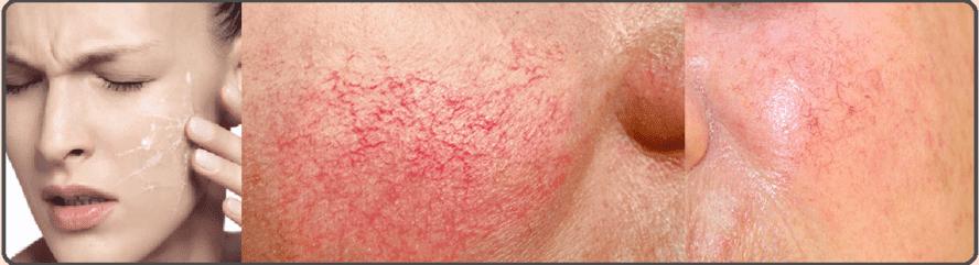خطورة وصفة نيڤيا و الزعفران للبشرة