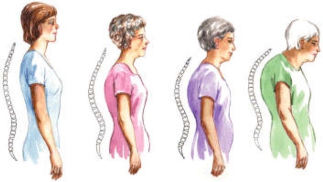 Kyphosis Exercises Kyphosis (extreme curve of the