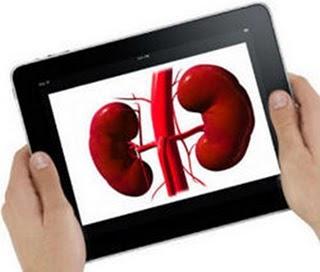 Chinês de 17 anos vende rim no mercado negro de órgãos para comprar a segunda versão do tablet da Apple
