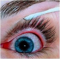 Over-Wearing Your Circle Contact Lenses