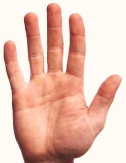 Dedo Indice torcido hacia el dedo Medio