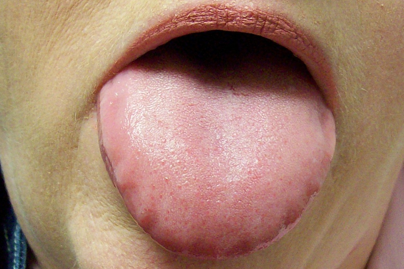 Ridges On Tongue