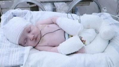 brody curtis bayi lahir tanpa kulit