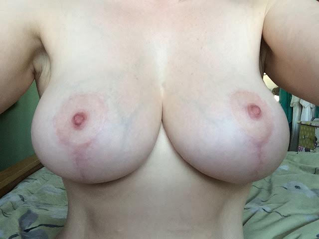 Breast uplift - BreastImplantsFriendscom