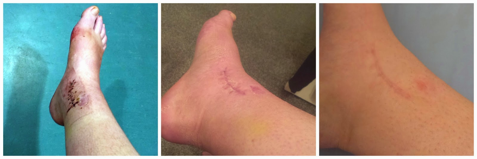 The healing process of the scar on the left side of my ankle