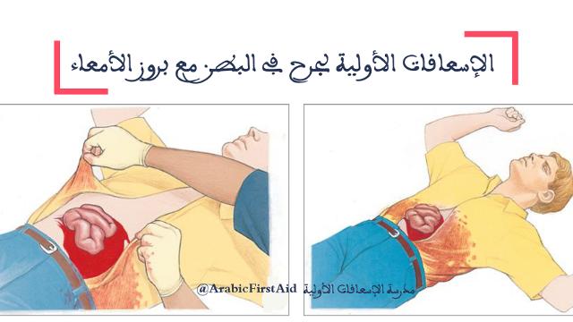 First-aid-ABDOMINAL-WOUND