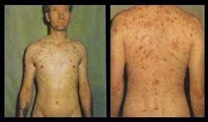 Penyakit sipilis yang menjalar keseluruh tubuh