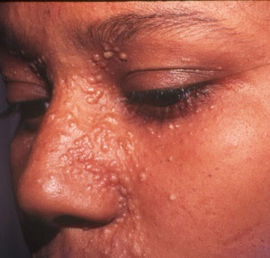 Trichoepithelioma Treatment therapy