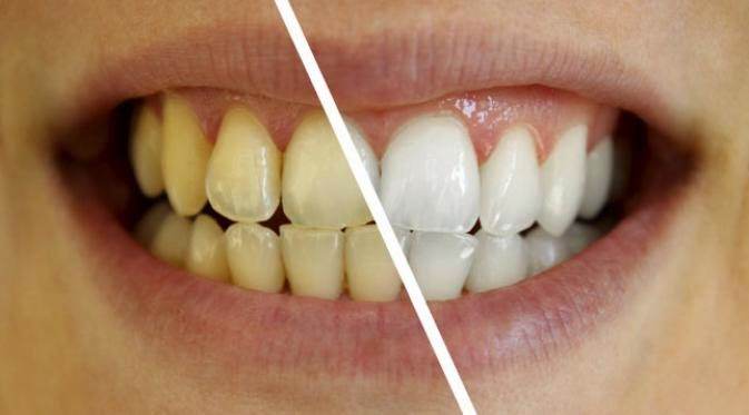 6 Cara Mudah Putihkan Gigi