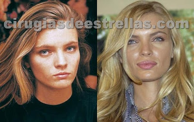 esther canadas antes y despues