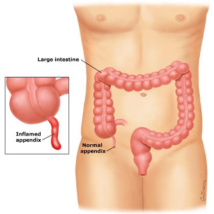 Body Organs Appendix Appendix