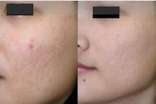 cicatrices acné traitements naturels