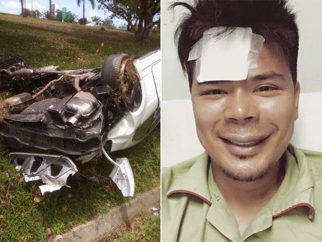 Wajah Awal Bengkak, Tiada Kecederaan Serius Selepas Kemalangan