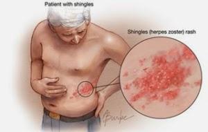 http://penjualanobatherbalalami.blogspot.com/2014/03/kisah-sembuh-dari-penyakit-herpes.html