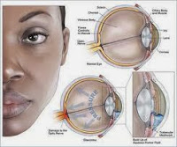 Bahaya Penyakit Glaukoma