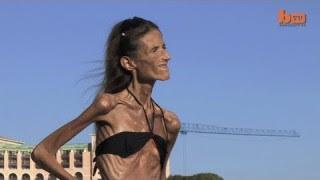 Valeria Levitin ne pèse que 30 kilos
