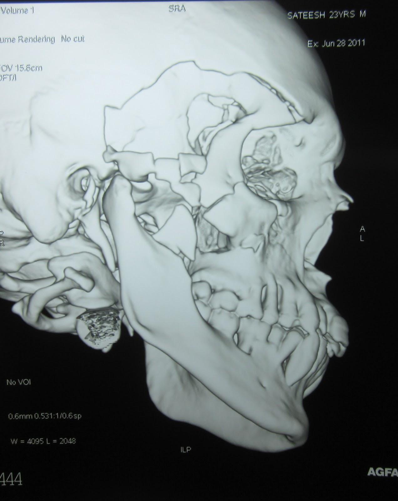 Burmese python facial pit