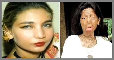 Pakistani acid attack victim Fakhra Younnus