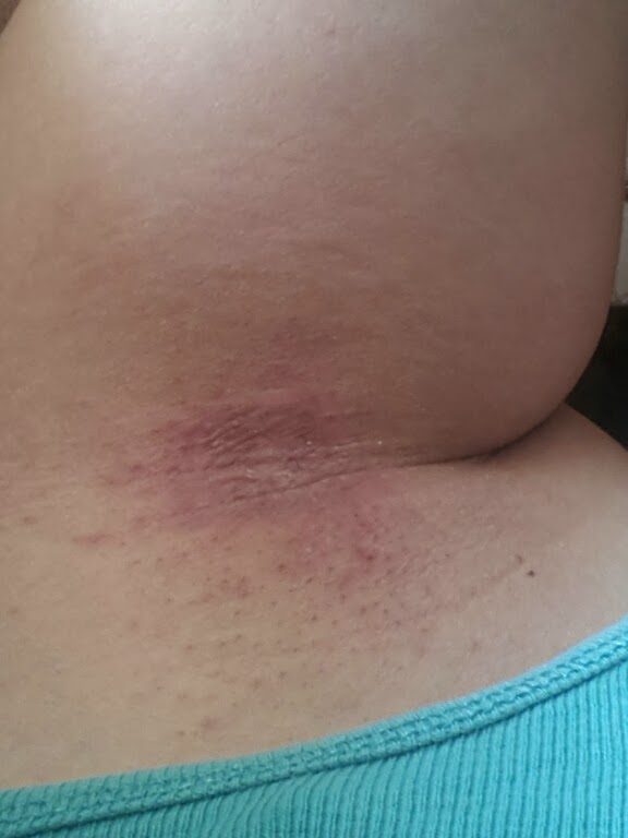 inflammatorisk bröstcancer klåda