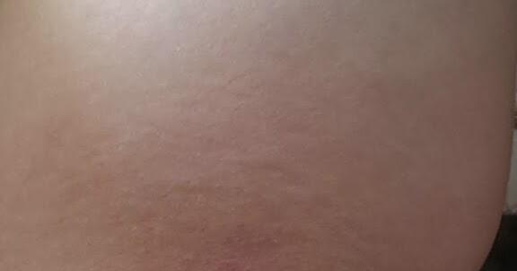 inflammatorisk bröstcancer bilder