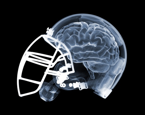 Brain Jack Image  Brain Helmet