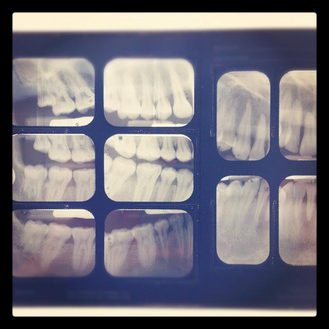 Dental School Radiology Rotation
