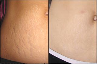 Phương pháp trị rạn da an toàn cho phụ nữ sau sinh