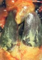 Hình 5: Viêm màng bao tim, viêm màng bao phúc mạc tăng sinh trắng đục khi nhiễm kế phát với E.coli.
