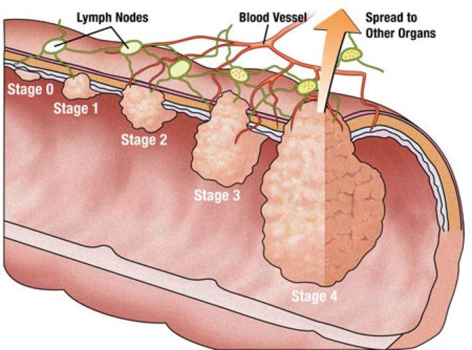 Геморрагический васкулит лаборатория