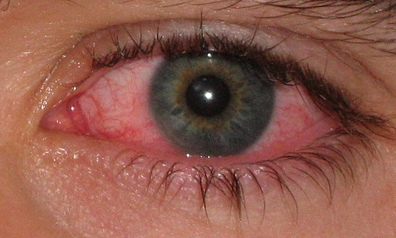 red on eyelid #9