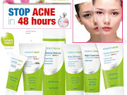 PERFECT SKIN Stop Acne in 48 Hours