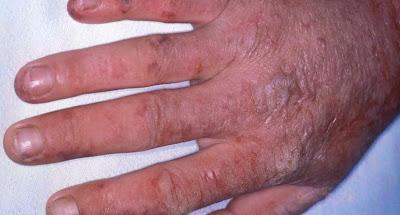 Gejala Penyebab dan cara mengatasi mengobati Penyakit atau Gangguan Porfiria