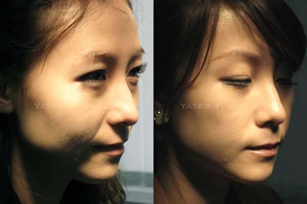 聚左旋乳酸3個月持續低調變臉Sculptra, PLLA