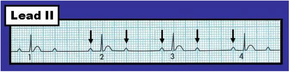 Figure 1   Lead II Rhythm Strip From A Patient In Cardiac Arrest. Is This  2nd Degree AV Block, Mobitz Type II? (Figure Reproduced From ACLS 2013 EPub  ).  2 1 Degree