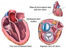 Hear valve replacement surgery