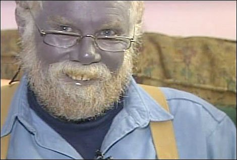 The Blue Man of Kentucky Martin Fugate | 1001 ...