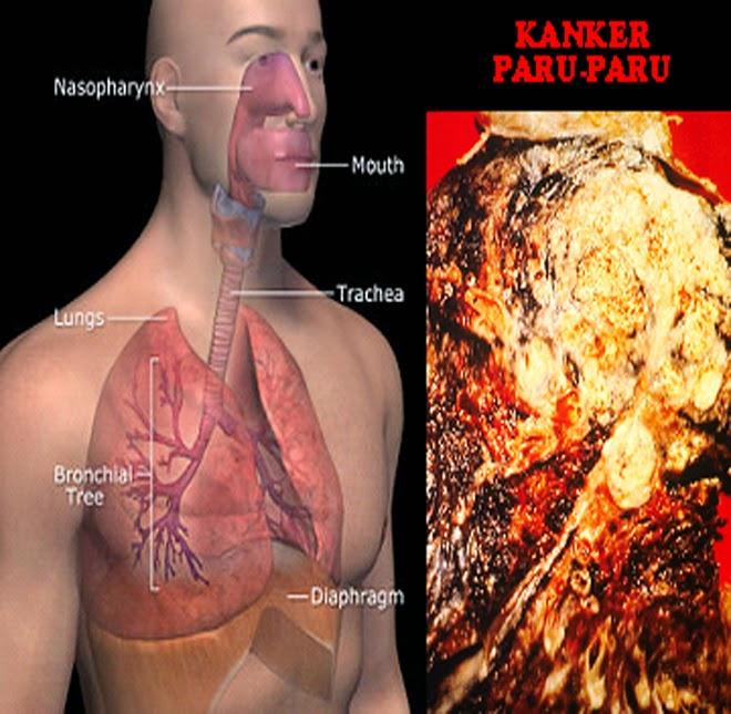 obat tumor Paru alami, obat kanker paru, pengobatan kanker paru