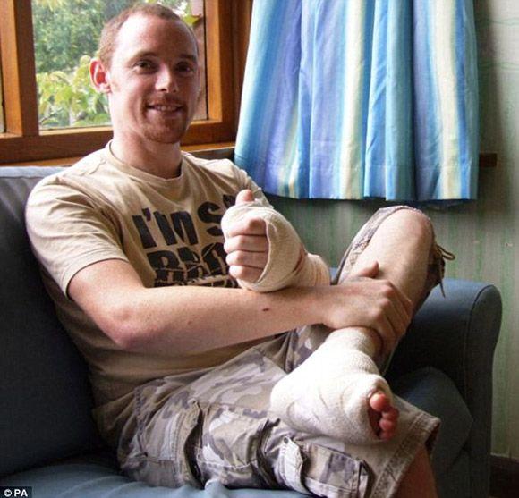 7. - Homem teve o dedão do pé reimplantado na mão após acidente.